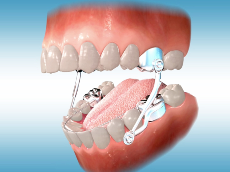 orthodontic terms and appliances