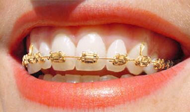choose your braces
